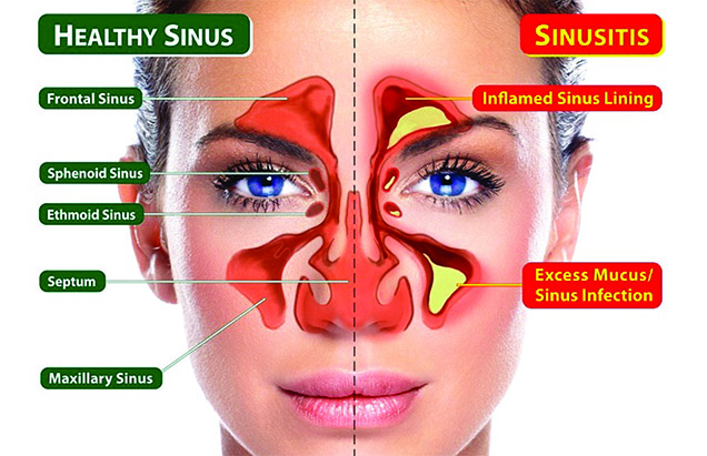 Map Of Sinuses 01/25/2017   Straightening Out Your Sinuses